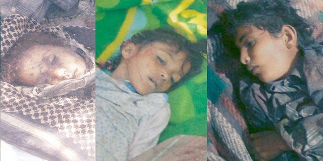 Yemen'deki kolera salgınında hayatını kaybedenlerin sayısı 398'e yükseldi