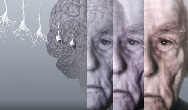 Spor, Alzheimer hastalığını önlemede etkili bir yol