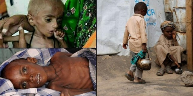 Yemen'deki kolera salgınında ölü sayısı 1.742'ye yükseldi