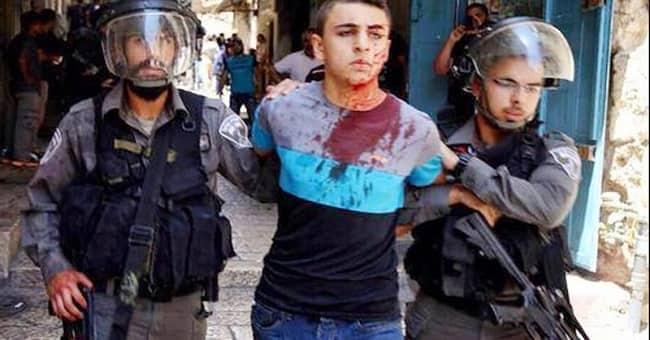 İşgalci israil güçlerinin saldırısında onlarca Filistinli yaralandı