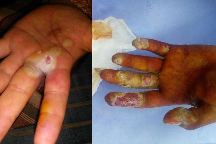 300 bin röntgen filmi çekilmesine karşılık gelecek kadar radyasyon dozuna maruz kaldı, elleri böyle oldu